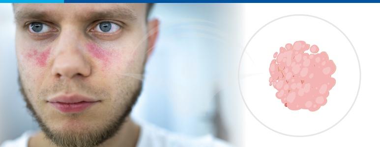lupus eritematos protocol