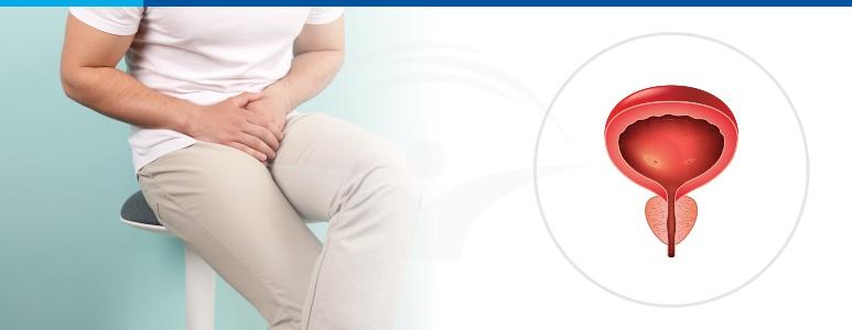 Mi a frotter prosztatitis A prosztatitis standard kezelése