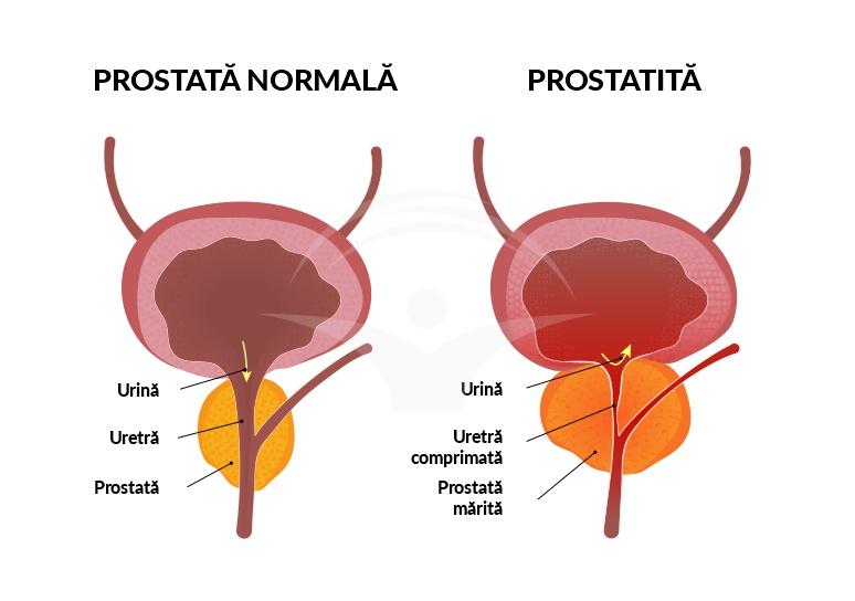 Krónikus stagnáló prosztatitis kezelés