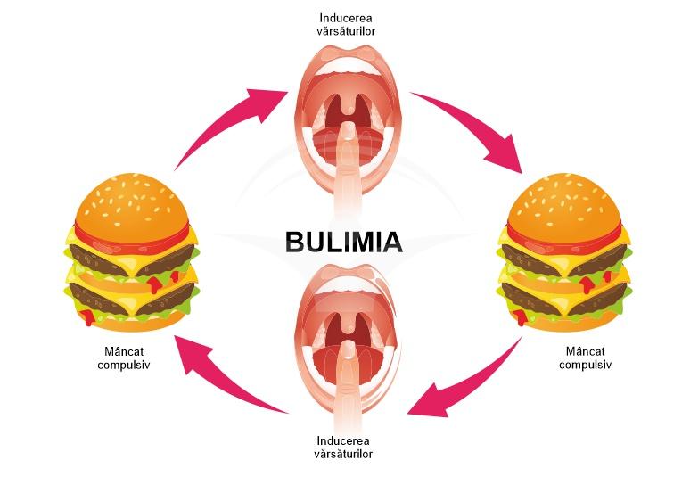 pierderea în greutate bulimie