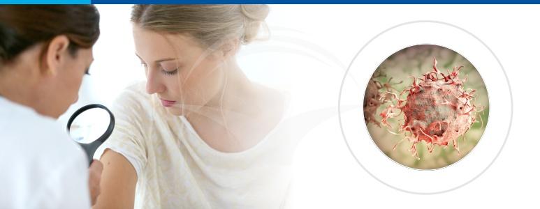cancer de piele frecventa margele sub piele
