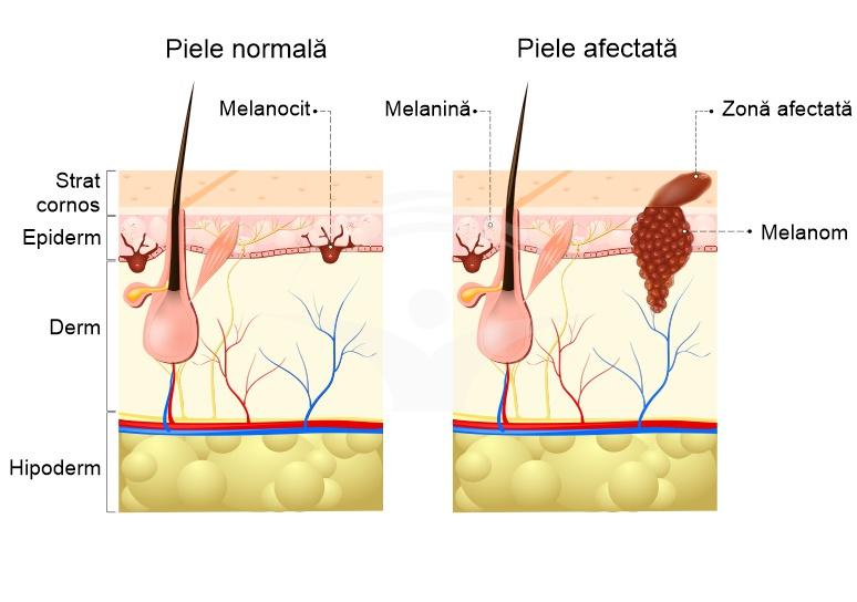 cancerul de piele tratament