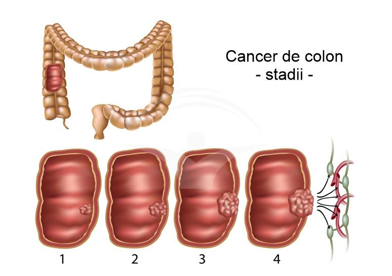 Cancerul de colon: cauze, simptome, investigatii, diagnostice