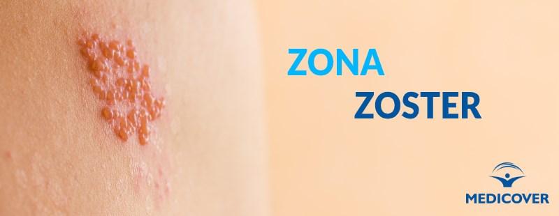 Zona Zoster... sau nevralgie intercostală?